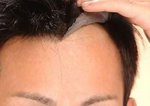 Hướng dẫn tháo tóc giả dạng dán – Hair system