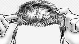 Căn chỉnh đường viền chân tóc phía trước về đúng vị trí mong muốn